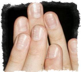Белые пятна на ногтях — болезнь или знак свыше