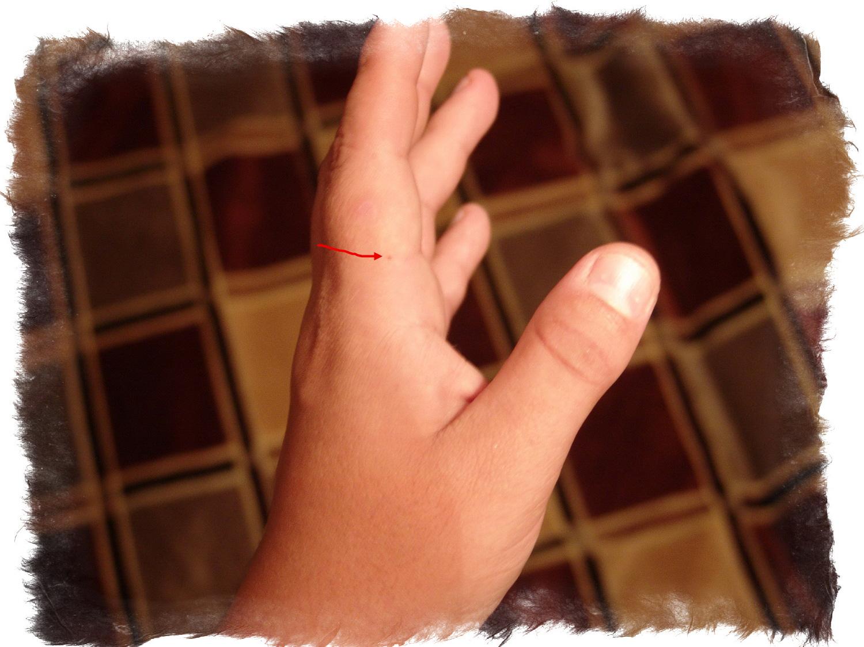 На среднем пальце правой руки появилась родинка