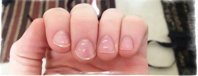 Пятна на ногтях что означают