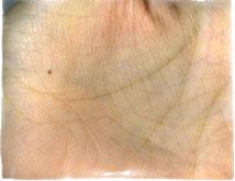 Бородавки на пальцах ног лечение народными средствами