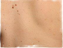 Появились маленькие папилломы на теле