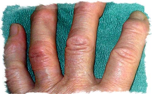 толстые пальцы