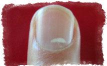 белые пятна на ногтях приметы