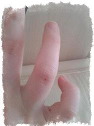 Родинка на безымянном пальце левой руки с внутренней стороны thumbnail